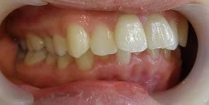 重度のガタガタな歯並び